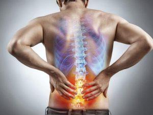 tratamiento ciática con fisioterapia